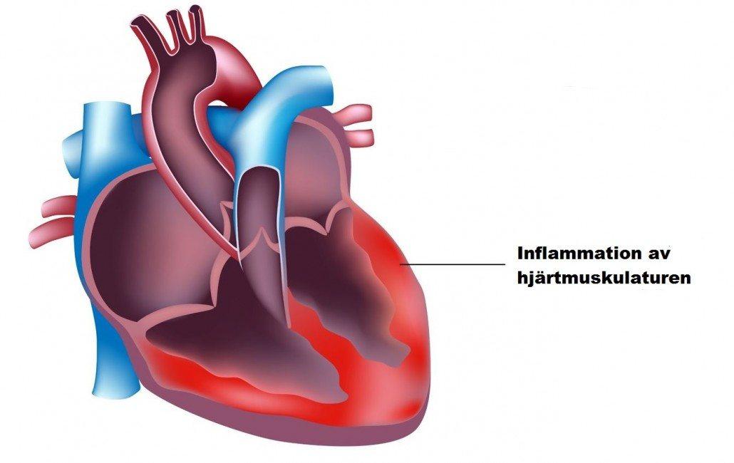 hjärtmuskelinflammation, hjärtmuskelinflammation träning, hjärtmuskelinflammation efter träning, hjärtmuskelinflammation efter sex, hjärtmuskelinflammation sjuk, hjärtmuskelinflammation efter tränat sjuk. hjärtmuskelinflammation feber träning, hjärtmuskelinflammation jogga, hjärtmuskelinflammation förkyld